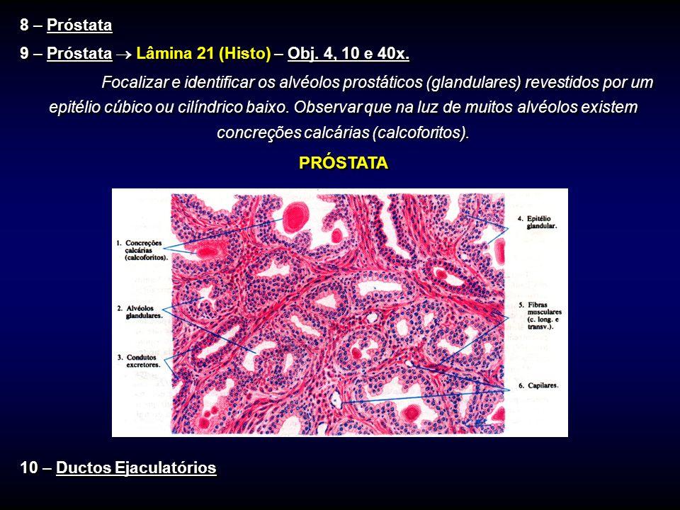 8 – Próstata 9 – Próstata Lâmina 21 (Histo) – Obj. 4, 10 e 40x. Focalizar e identificar os alvéolos prostáticos (glandulares) revestidos por um epitél
