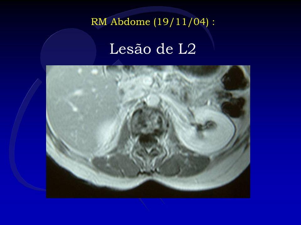RM Abdome (19/11/04) : Lesão de L2