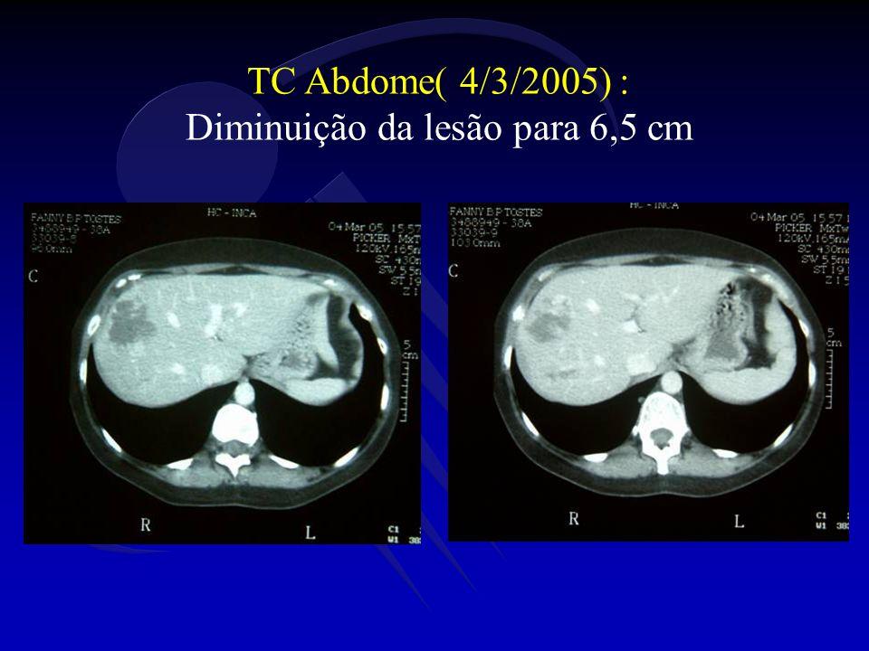 TC Abdome( 4/3/2005) : Diminuição da lesão para 6,5 cm