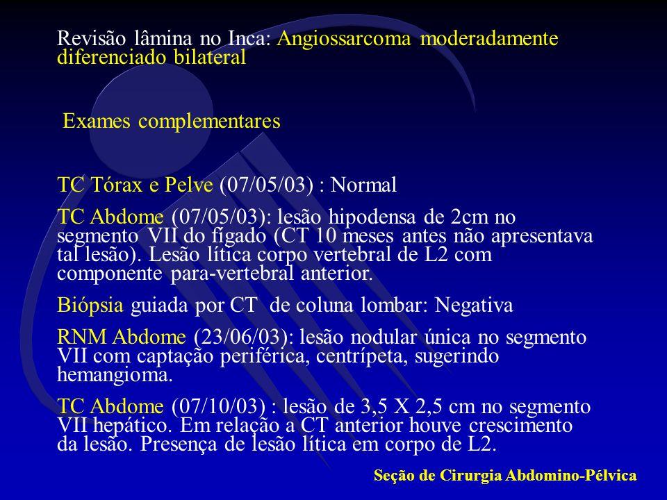 EDA Out 2003 : Normal Nova Biópsia de coluna lombar (12/11/03) : Angiossarcoma metastático para medula óssea Radioterapia 12 jan/04 a 02 fev/04 : 40 Gy em 15 frações sobre coluna lombar Exames complementares US Abdome (06/07/04): Lesão hiperecóica e heterogênea medindo 8,6cm.
