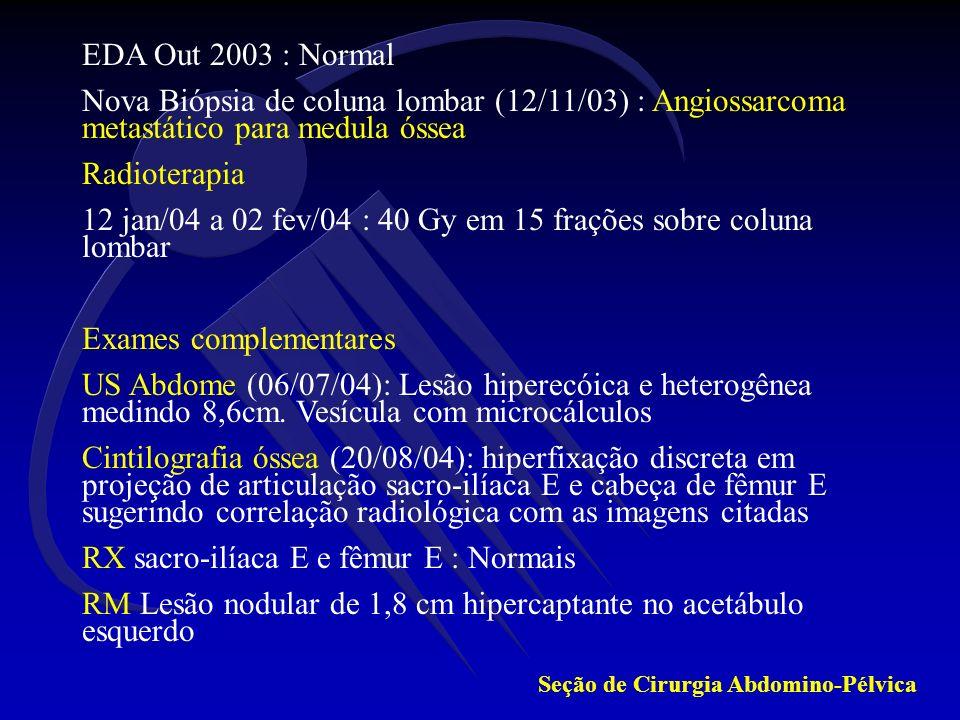 EDA Out 2003 : Normal Nova Biópsia de coluna lombar (12/11/03) : Angiossarcoma metastático para medula óssea Radioterapia 12 jan/04 a 02 fev/04 : 40 G