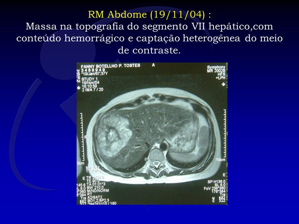 RM Abdome (19/11/04) : Massa na topografia do segmento VII hepático,com conteúdo hemorrágico e captação heterogênea do meio de contraste.