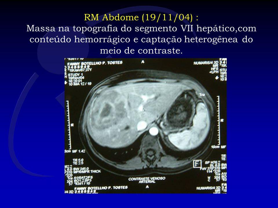 Peça Seção de Cirurgia Abdomino-Pélvica