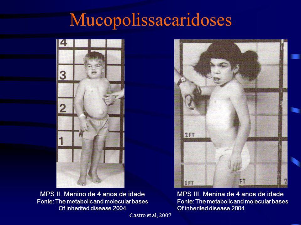 Distúrbios genéticos Síndrome de Down Alteração do cromossoma 21