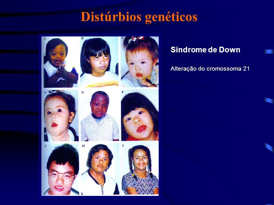 Distúrbios genéticos Síndrome de Patau Alteração do cromossoma 13