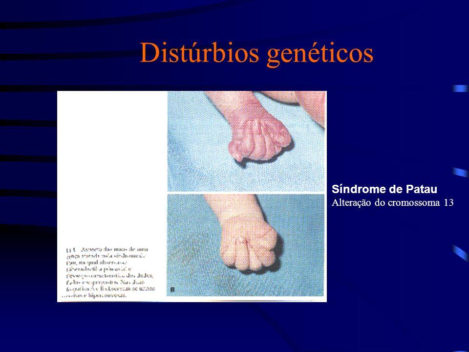 Anomalias Congênitas Anomalias congênitas são alterações do desenvolvimento de um órgão ou sistema, presentes ao nascimento, decorrentes de fatores genéticos, ambientais ou desconhecidos.