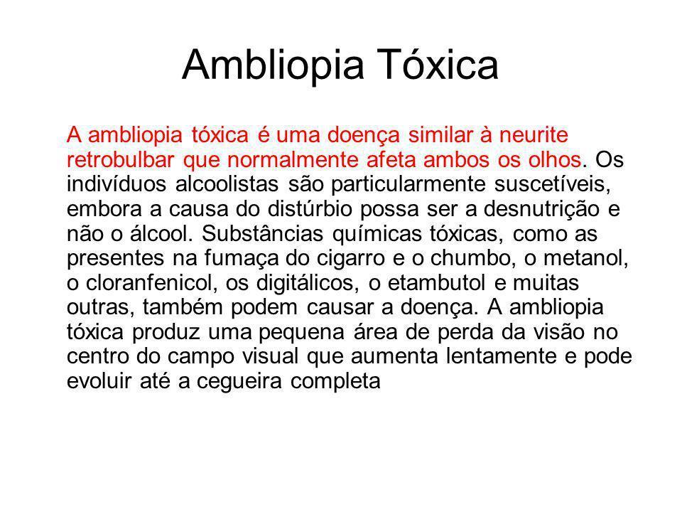 Ambliopia Tóxica A ambliopia tóxica é uma doença similar à neurite retrobulbar que normalmente afeta ambos os olhos. Os indivíduos alcoolistas são par