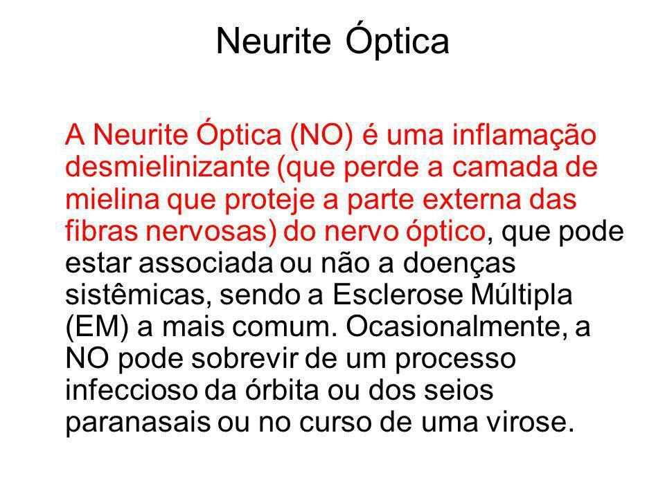 Neurite Óptica A Neurite Óptica (NO) é uma inflamação desmielinizante (que perde a camada de mielina que proteje a parte externa das fibras nervosas)