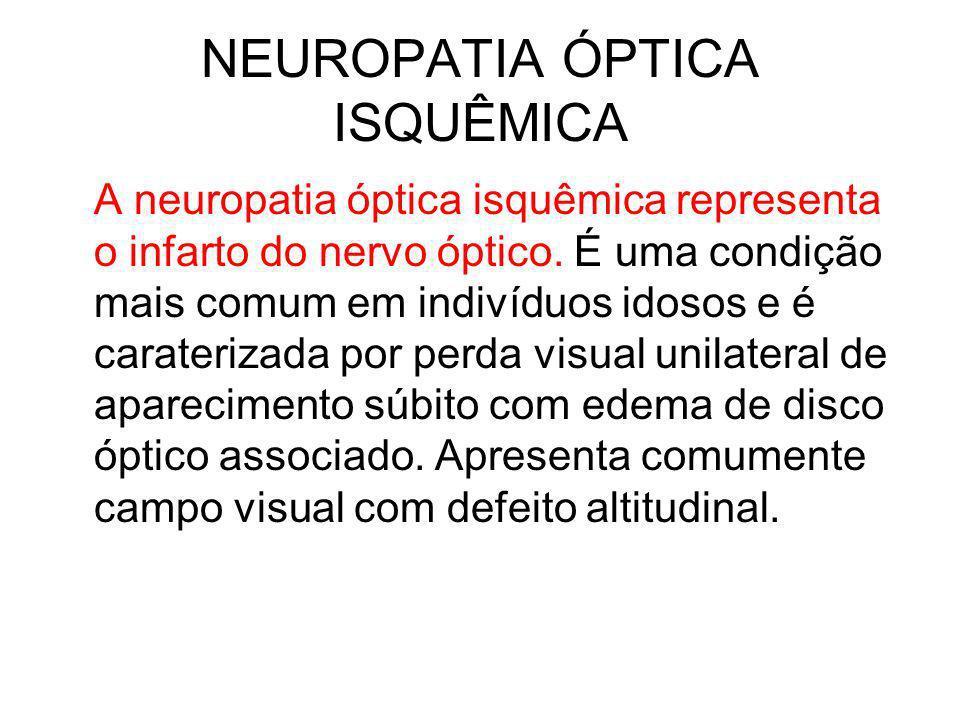 NEUROPATIA ÓPTICA ISQUÊMICA A neuropatia óptica isquêmica representa o infarto do nervo óptico. É uma condição mais comum em indivíduos idosos e é car