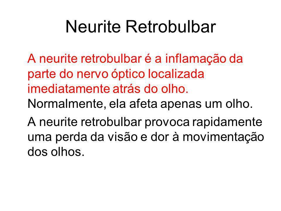 Neurite Retrobulbar A neurite retrobulbar é a inflamação da parte do nervo óptico localizada imediatamente atrás do olho. Normalmente, ela afeta apena