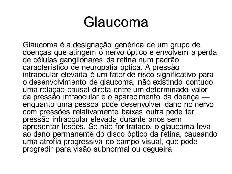 Glaucoma é a designação genérica de um grupo de doenças que atingem o nervo óptico e envolvem a perda de células ganglionares da retina num padrão car