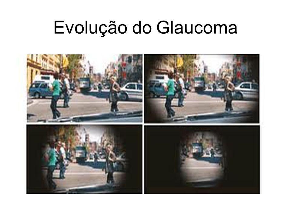 Evolução do Glaucoma