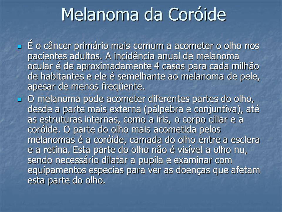 Melanoma da Coróide É o câncer primário mais comum a acometer o olho nos pacientes adultos. A incidência anual de melanoma ocular é de aproximadamente