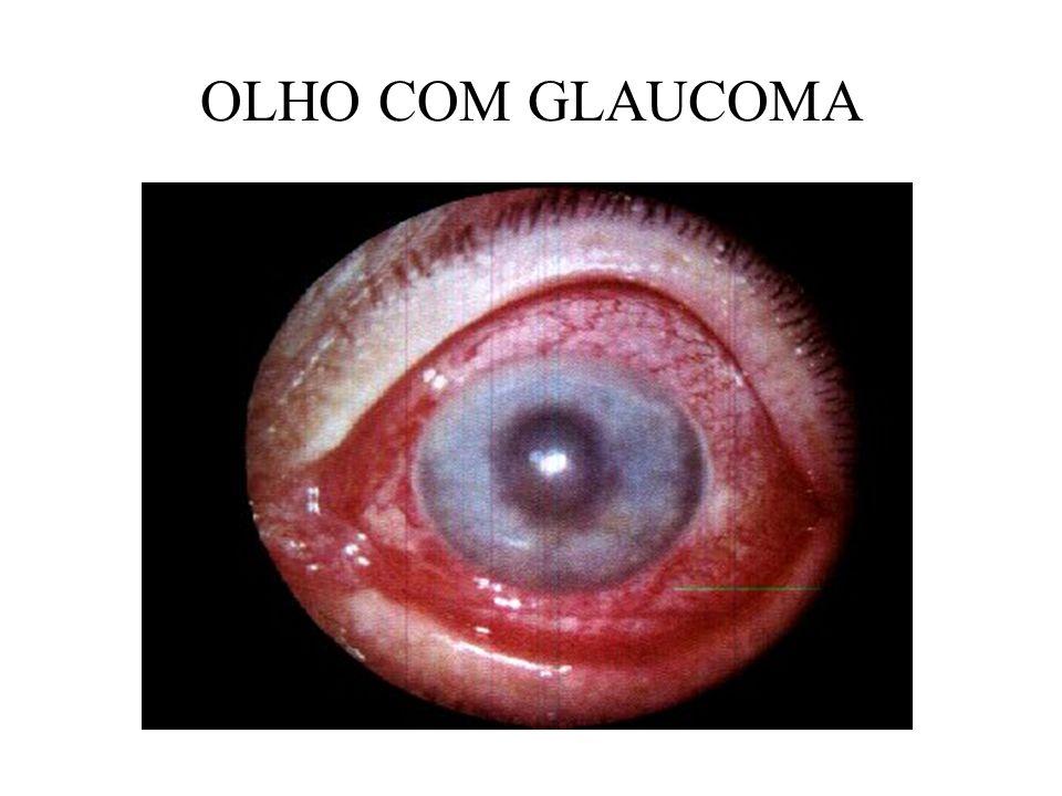 CRISTALINO É a lente dos olhos, biconvexa, avascular, incolor, e quase transparente; É a lente dos olhos, biconvexa, avascular, incolor, e quase transparente; O cristalino é um cito sistema, incluído em uma cápsula, localiza-se entre a íris e o humor vítreo; O cristalino é um cito sistema, incluído em uma cápsula, localiza-se entre a íris e o humor vítreo; O cristalino cresce continuamente durante a vida do individuo; O cristalino cresce continuamente durante a vida do individuo; Ao nascimento seu diâmetro é de 6,5 mm aos 15 anos passa para 9,00 mm, depois ela continua crescendo, mas muito lenta; Ao nascimento seu diâmetro é de 6,5 mm aos 15 anos passa para 9,00 mm, depois ela continua crescendo, mas muito lenta;