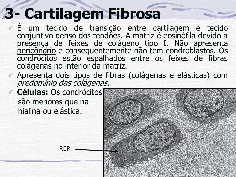 3- Cartilagem Fibrosa É um tecido de transição entre cartilagem e tecido conjuntivo denso dos tendões. A matriz é eosinófila devido a presença de feix