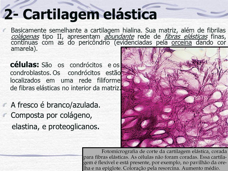 2- Cartilagem elástica Basicamente semelhante a cartilagem hialina. Sua matriz, além de fibrilas colágenas tipo II, apresentam abundante rede de fibra