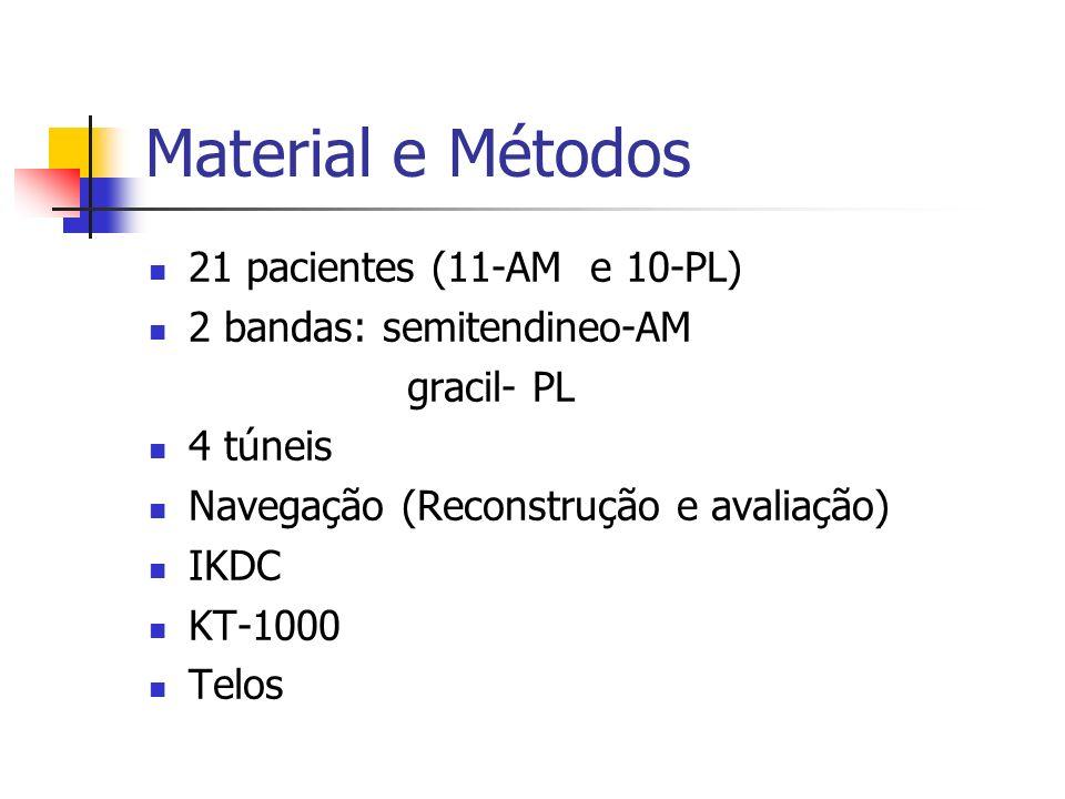 Material e Métodos 21 pacientes (11-AM e 10-PL) 2 bandas: semitendineo-AM gracil- PL 4 túneis Navegação (Reconstrução e avaliação) IKDC KT-1000 Telos