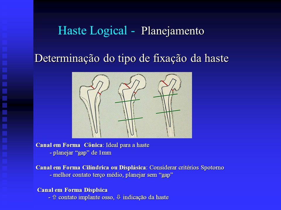 Planejamento Haste Logical - Planejamento Determinação do tipo de fixação da haste Canal em Forma Cônica: Ideal para a haste Canal em Forma Cônica: Id