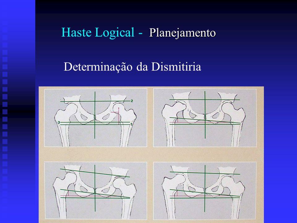 Planejamento Haste Logical - Planejamento Determinação da Dismitiria