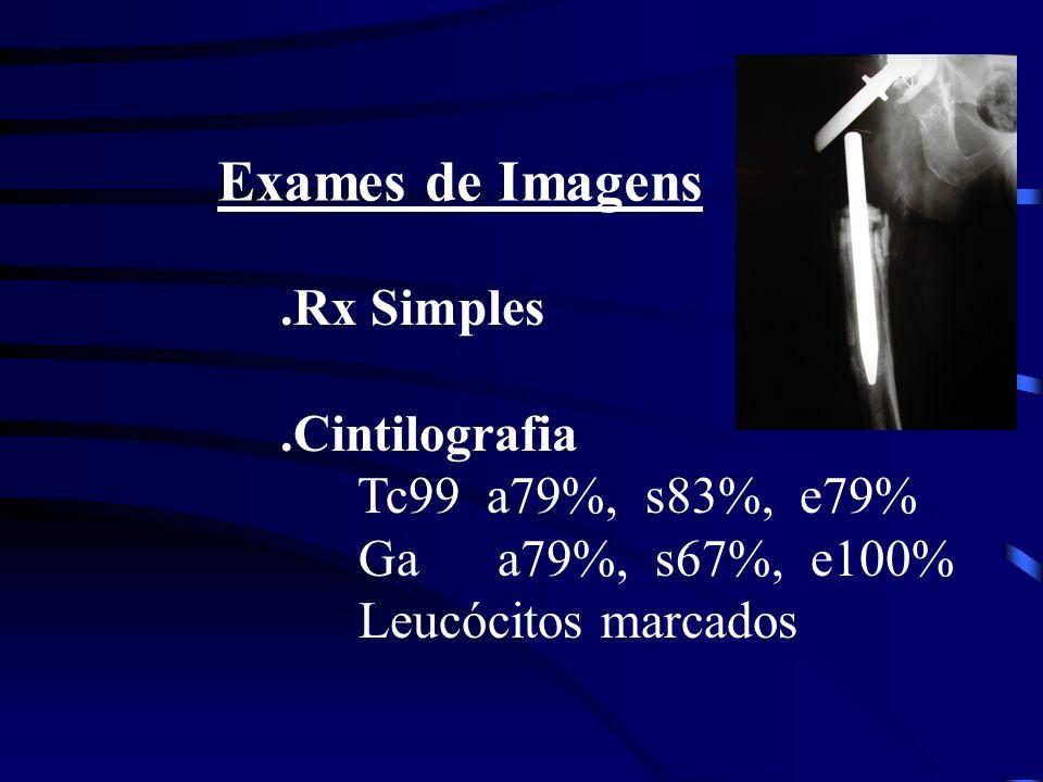 Exames de Imagens.Rx Simples.Cintilografia Tc99 a79%, s83%, e79% Ga a79%, s67%, e100% Leucócitos marcados
