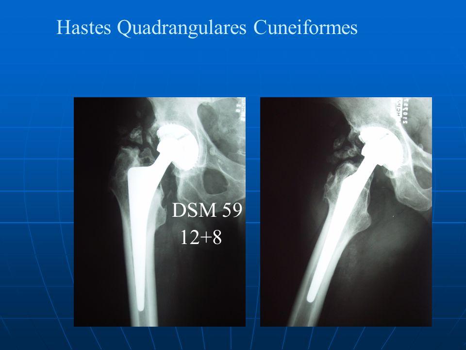 Hastes Quadrangulares Cuneiformes DSM 59 12+8