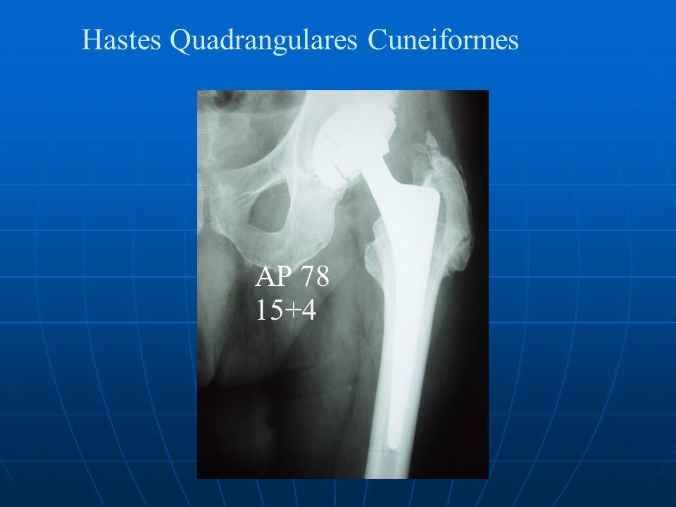 Hastes Quadrangulares Cuneiformes AP 78 15+4