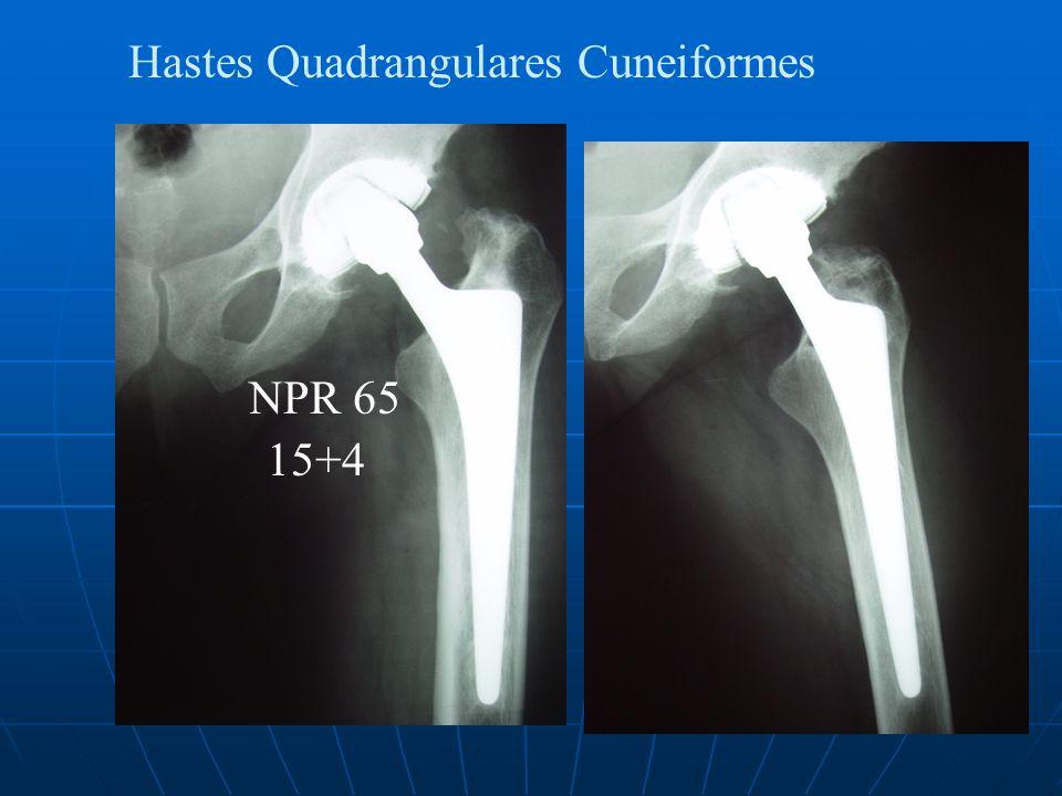 Hastes Quadrangulares Cuneiformes NPR 65 15+4