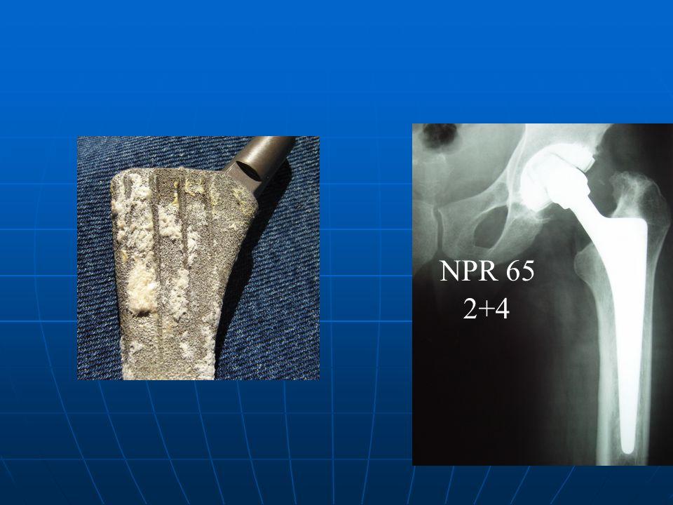 NPR 65 2+4
