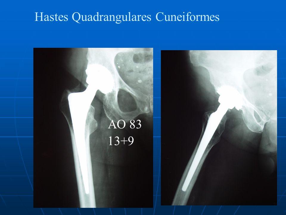 Hastes Quadrangulares Cuneiformes AO 83 13+9