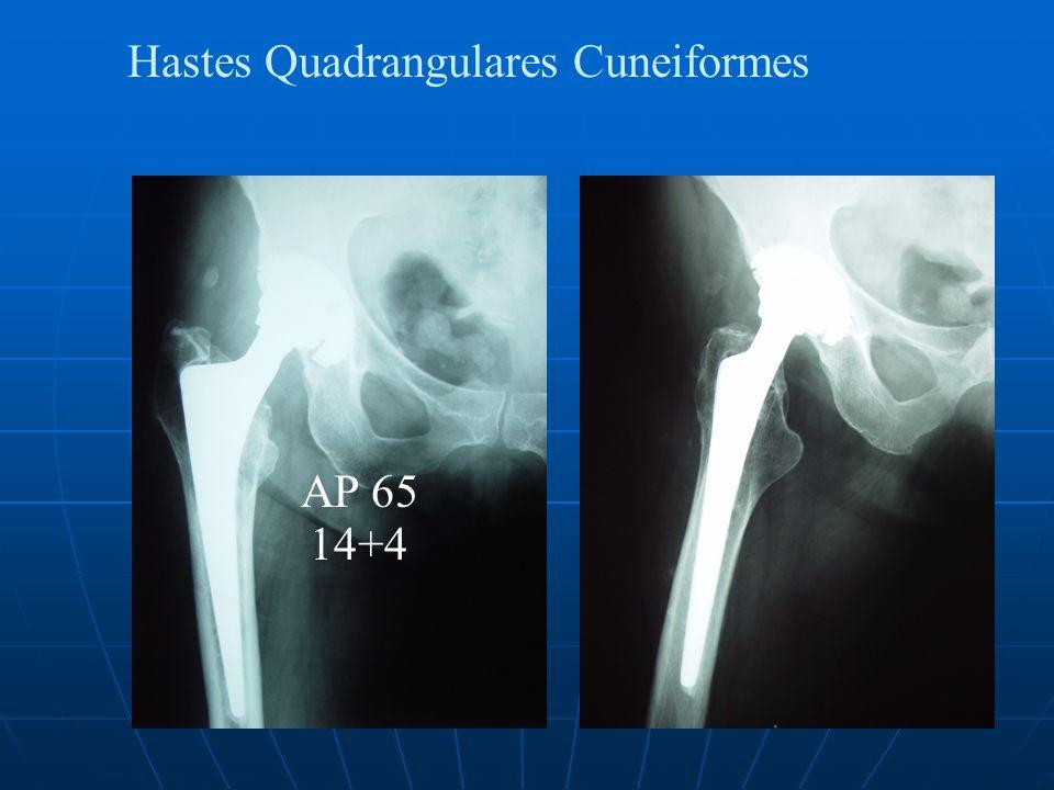 Hastes Quadrangulares Cuneiformes AP 65 14+4