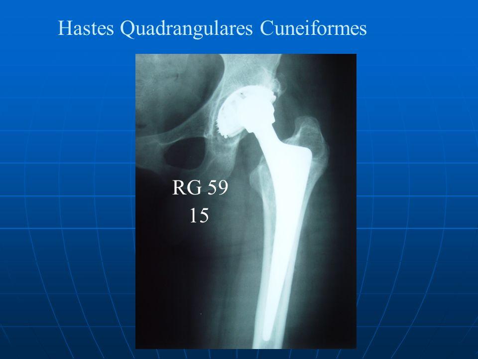 Hastes Quadrangulares Cuneiformes RG 59 15