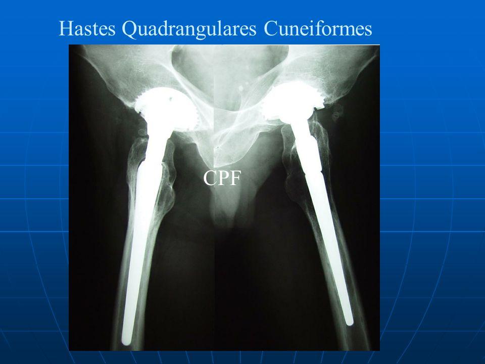 Hastes Quadrangulares Cuneiformes CPF