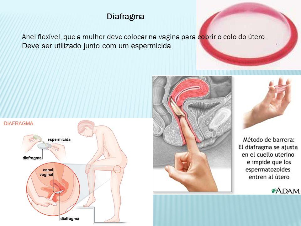 Diafragma Anel flexível, que a mulher deve colocar na vagina para cobrir o colo do útero. Deve ser utilizado junto com um espermicida.
