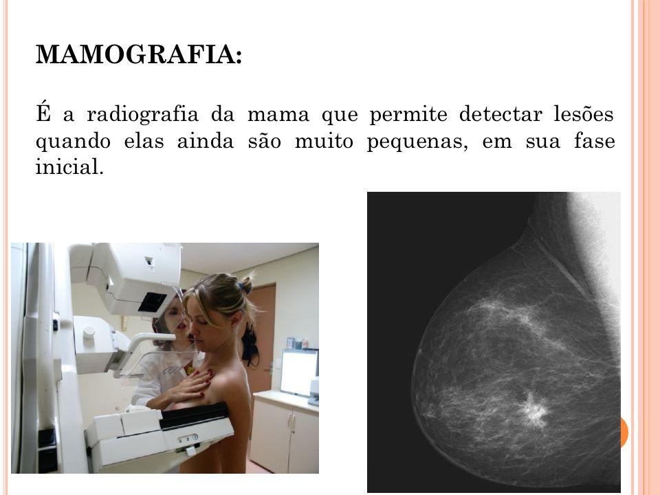 MAMOGRAFIA: É a radiografia da mama que permite detectar lesões quando elas ainda são muito pequenas, em sua fase inicial.