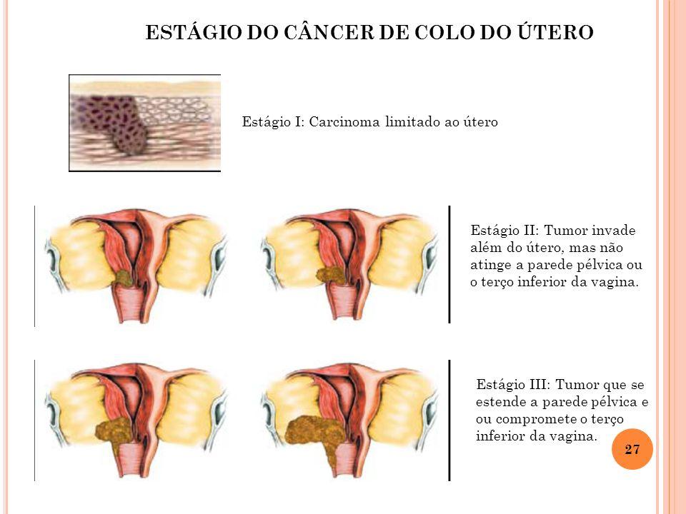 27 Estágio I: Carcinoma limitado ao útero Estágio II: Tumor invade além do útero, mas não atinge a parede pélvica ou o terço inferior da vagina. Estág