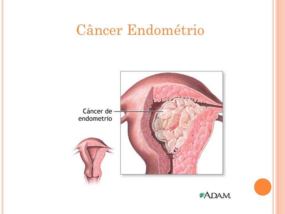 Câncer Endométrio
