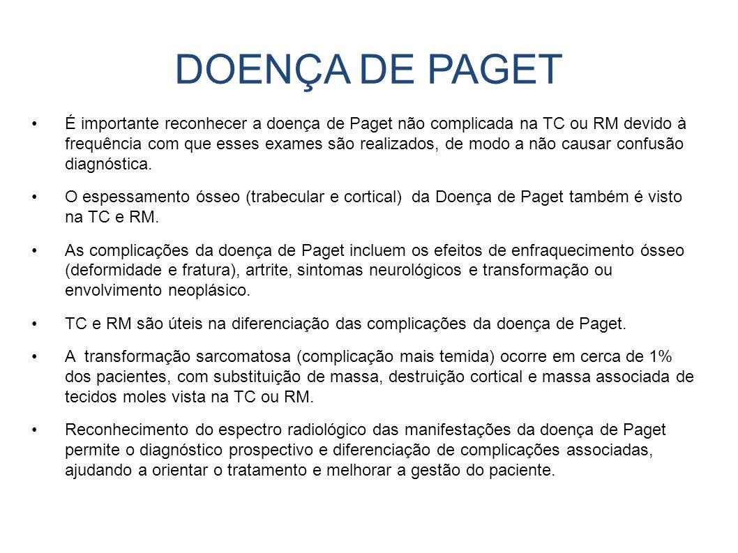 DOENÇA DE PAGET É importante reconhecer a doença de Paget não complicada na TC ou RM devido à frequência com que esses exames são realizados, de modo