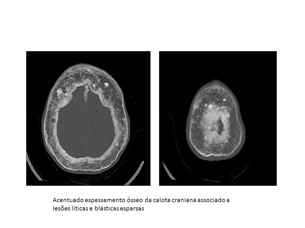 Acentuado espessamento ósseo da calota craniana associado a lesões líticas e blásticas esparsas