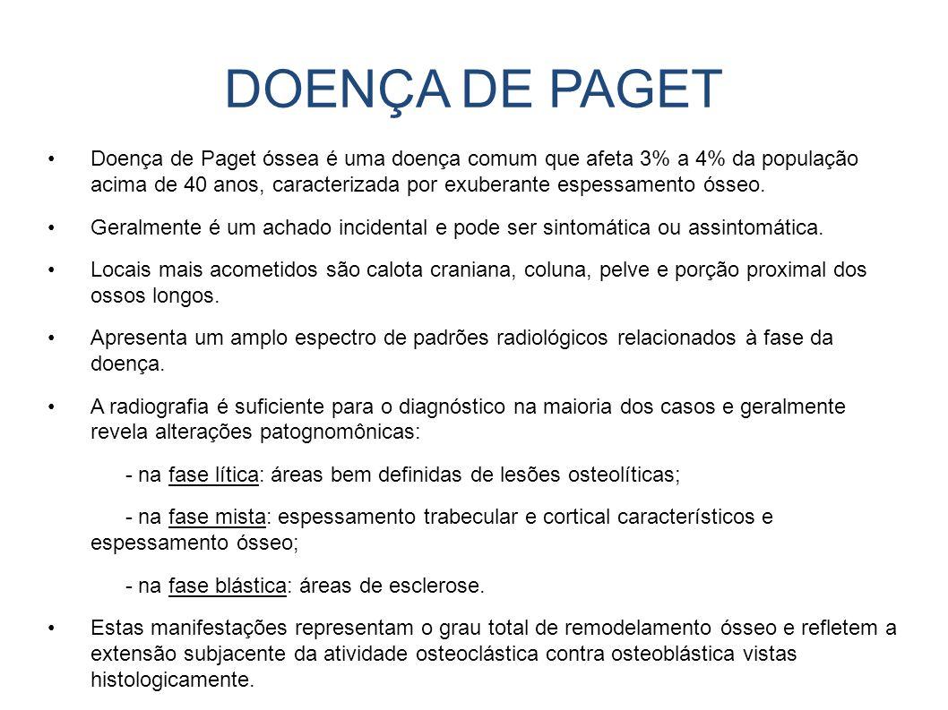 Doença de Paget óssea é uma doença comum que afeta 3% a 4% da população acima de 40 anos, caracterizada por exuberante espessamento ósseo. Geralmente
