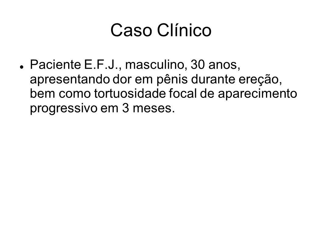 Caso Clínico Paciente E.F.J., masculino, 30 anos, apresentando dor em pênis durante ereção, bem como tortuosidade focal de aparecimento progressivo em