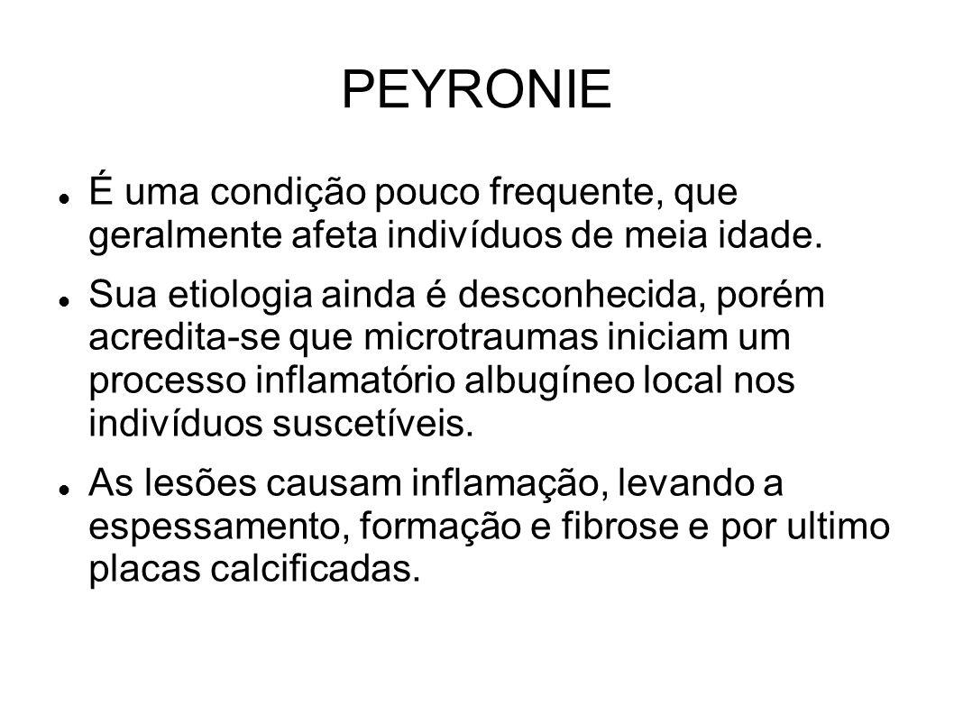 PEYRONIE É uma condição pouco frequente, que geralmente afeta indivíduos de meia idade. Sua etiologia ainda é desconhecida, porém acredita-se que micr