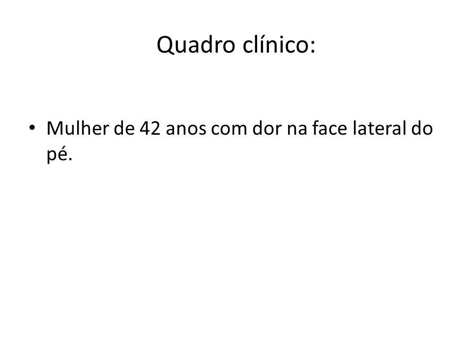 Quadro clínico: Mulher de 42 anos com dor na face lateral do pé.