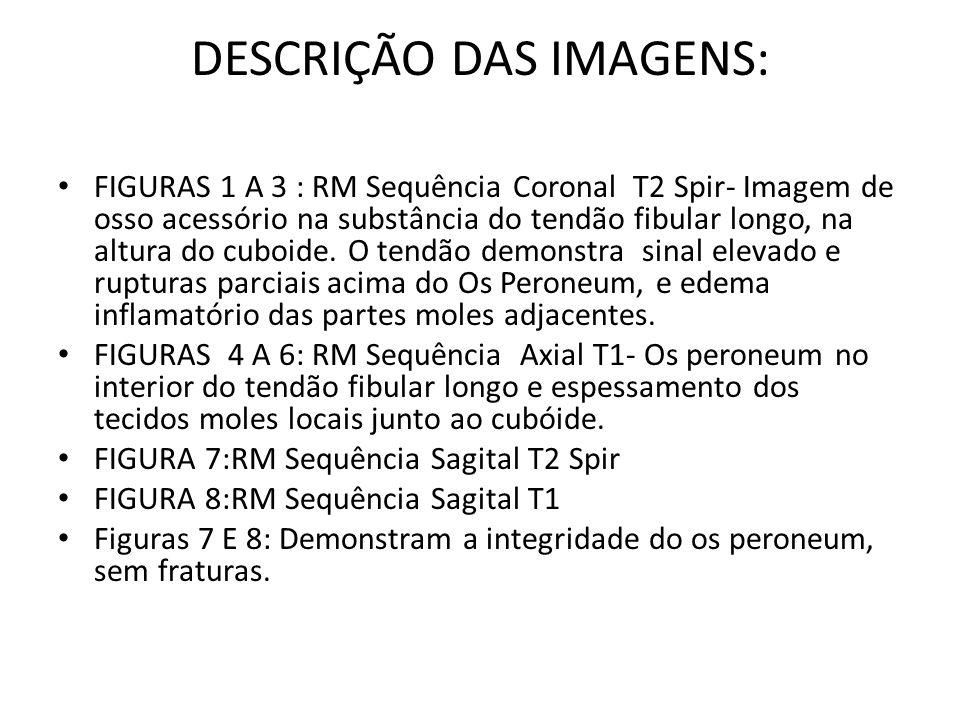 DESCRIÇÃO DAS IMAGENS: FIGURAS 1 A 3 : RM Sequência Coronal T2 Spir- Imagem de osso acessório na substância do tendão fibular longo, na altura do cuboide.