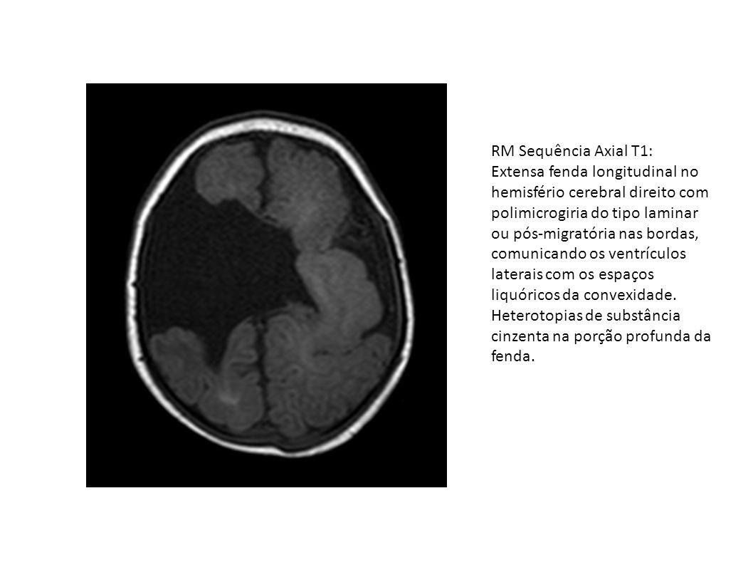 RM Sequência Axial T1: Extensa fenda longitudinal no hemisfério cerebral direito com polimicrogiria do tipo laminar ou pós-migratória nas bordas, comu