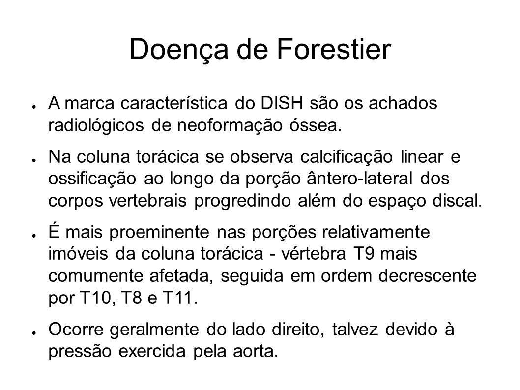 Doença de Forestier A marca característica do DISH são os achados radiológicos de neoformação óssea. Na coluna torácica se observa calcificação linear