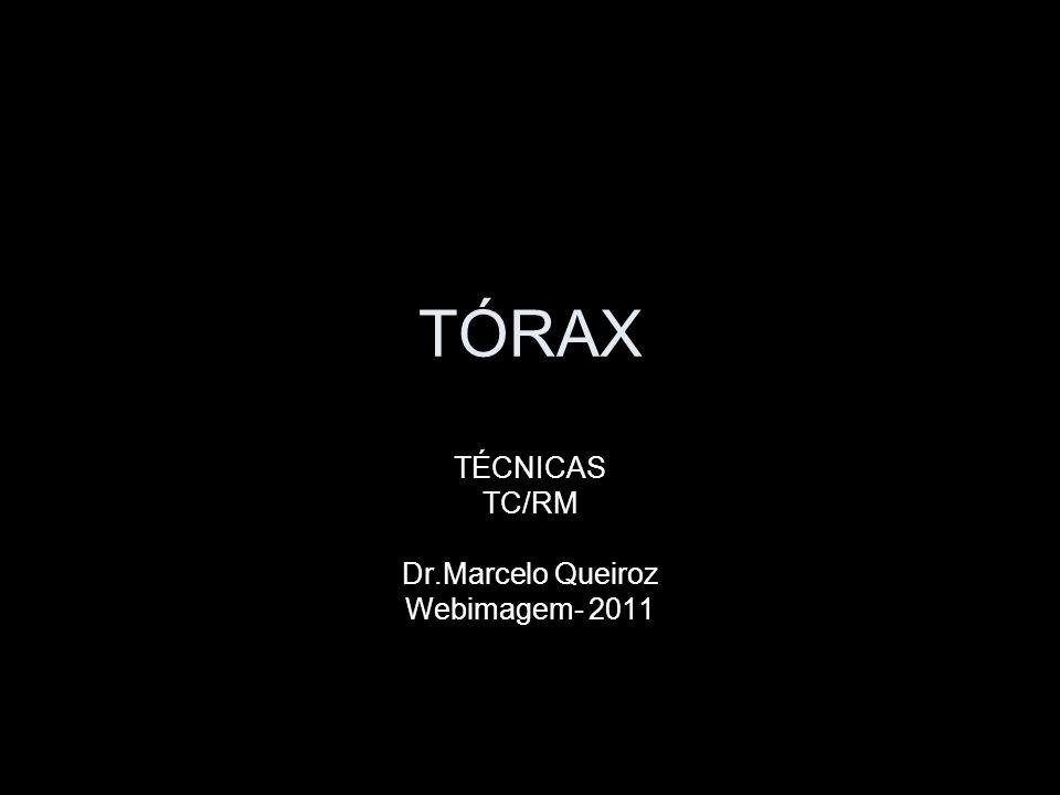 TÓRAX TÉCNICAS TC/RM Dr.Marcelo Queiroz Webimagem- 2011