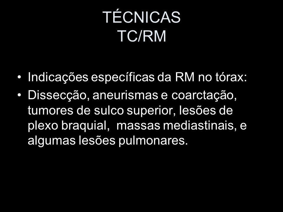 TÉCNICAS TC/RM Indicações específicas da RM no tórax: Dissecção, aneurismas e coarctação, tumores de sulco superior, lesões de plexo braquial, massas