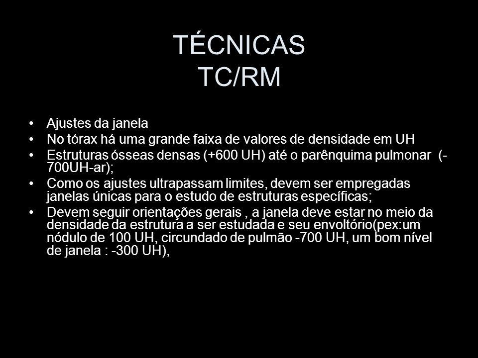 TÉCNICAS TC/RM Ajustes da janela No tórax há uma grande faixa de valores de densidade em UH Estruturas ósseas densas (+600 UH) até o parênquima pulmon