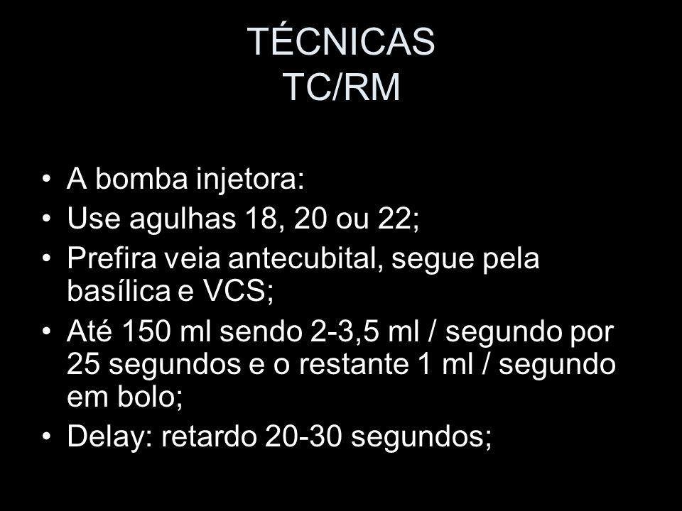 TÉCNICAS TC/RM A bomba injetora: Use agulhas 18, 20 ou 22; Prefira veia antecubital, segue pela basílica e VCS; Até 150 ml sendo 2-3,5 ml / segundo po