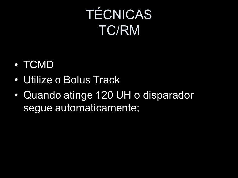 TÉCNICAS TC/RM TCMD Utilize o Bolus Track Quando atinge 120 UH o disparador segue automaticamente;